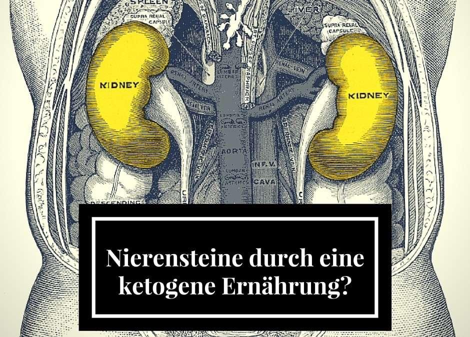 Bekommt man von einer ketogenen Ernährung Nierensteine?