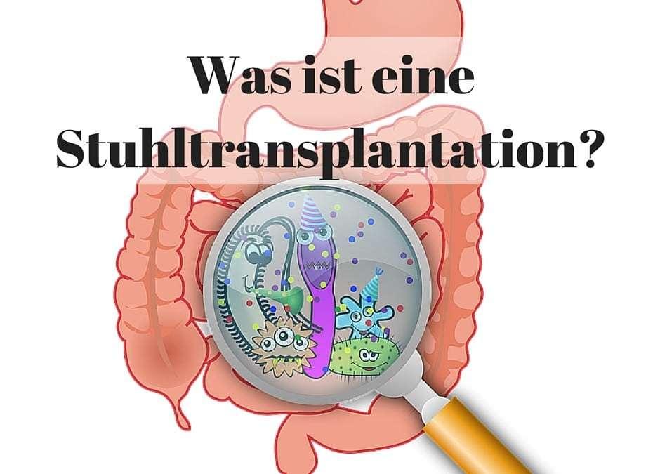 Was ist eine Stuhltransplantation?